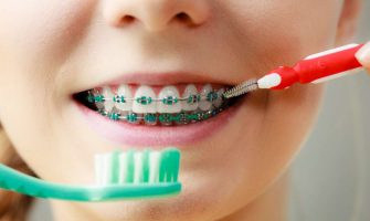 Tips to Help Children Take Care of Their Braces